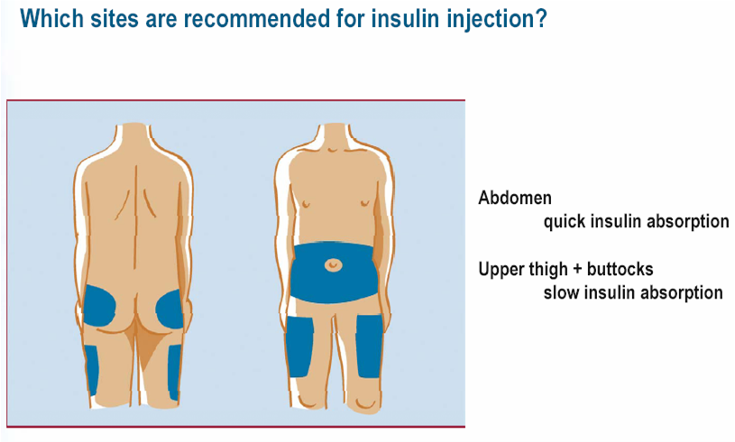 Bath Wiltshire And North Somerset Diabetes Service Injection Sites
